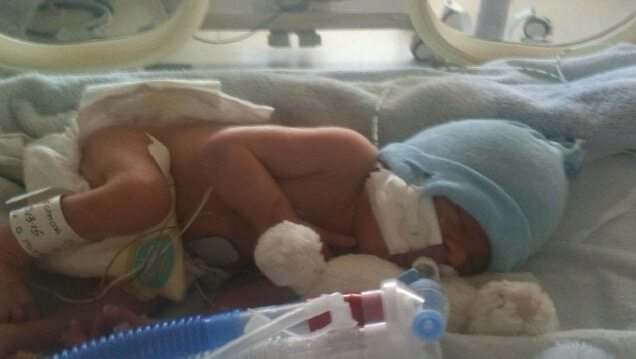 Guest post: World Premturity day picture of a premature baby in an incubator